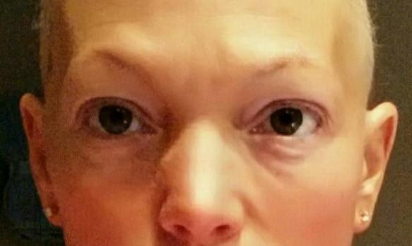 Eyelashless.